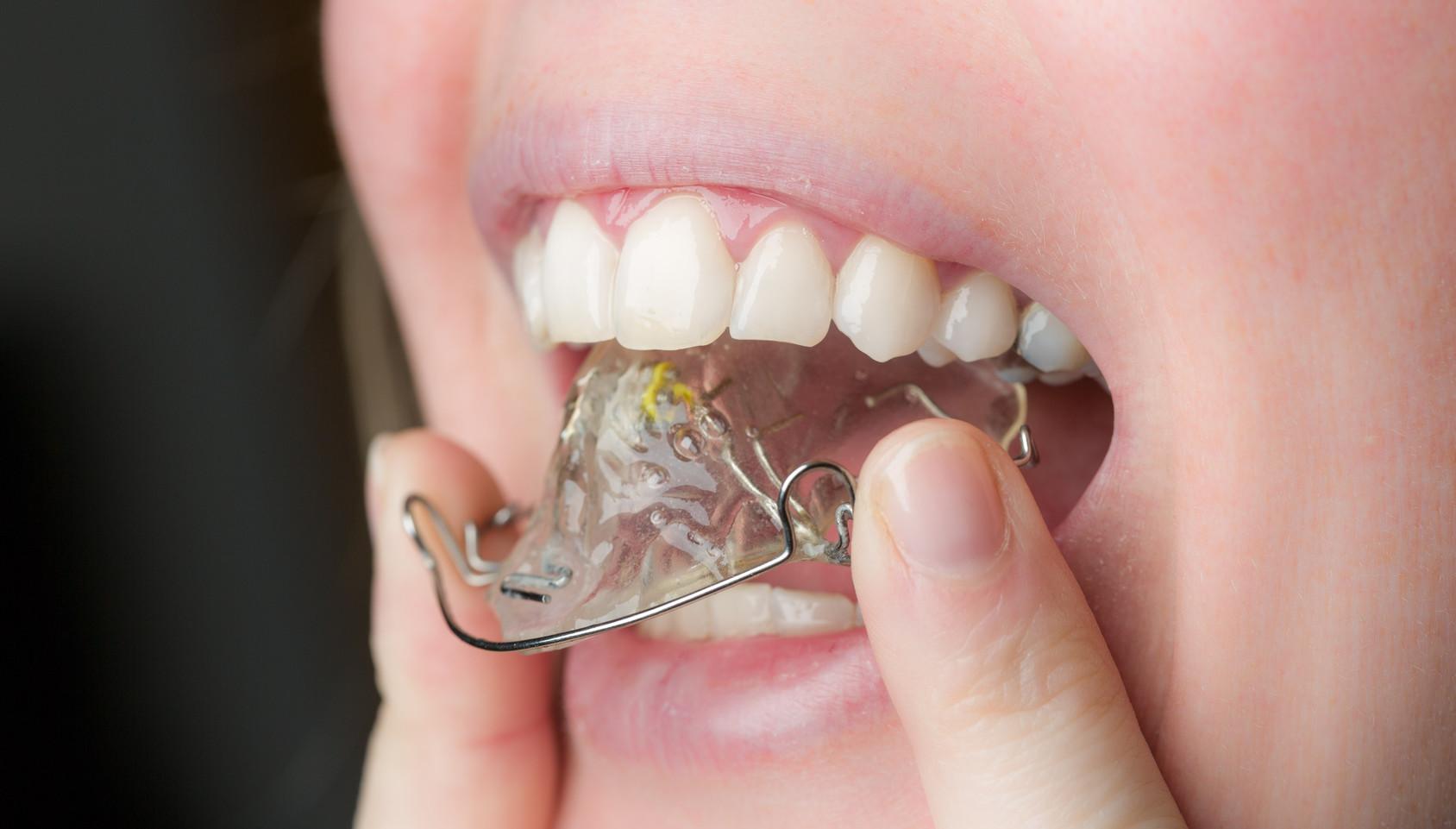 Mund mit Zahnspange