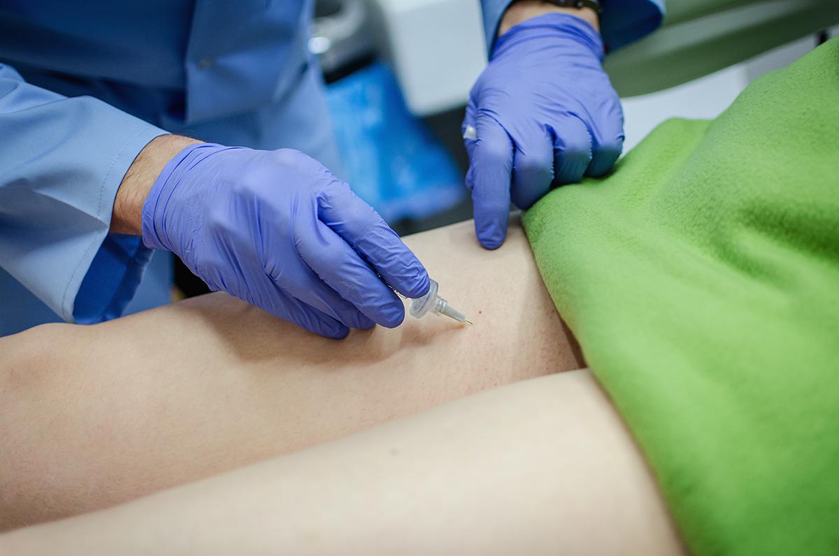 Leczenie cellulitu karboksyterapią
