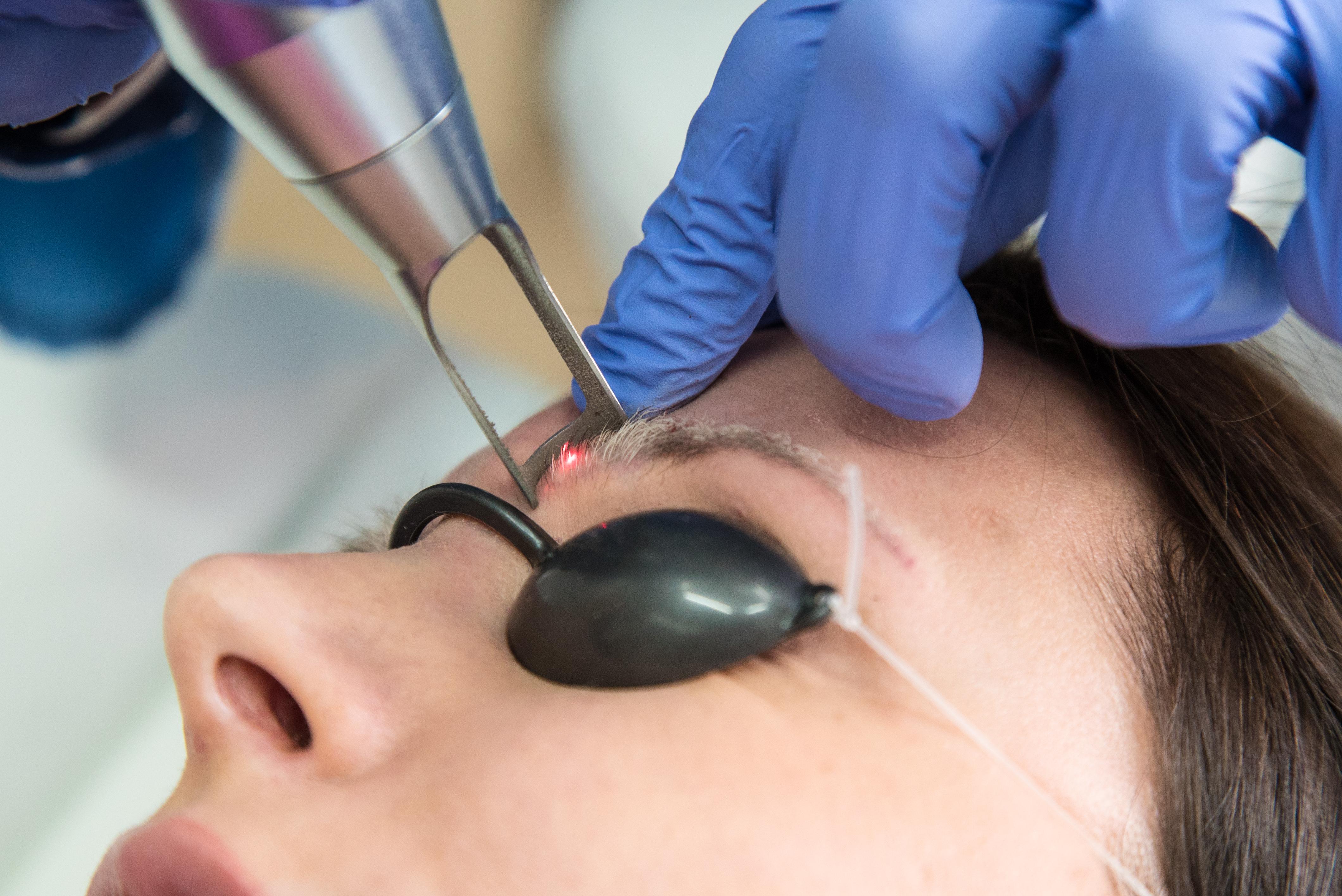 Usuwanie tatuażu i makijażu permanentnego laserem Q-switch