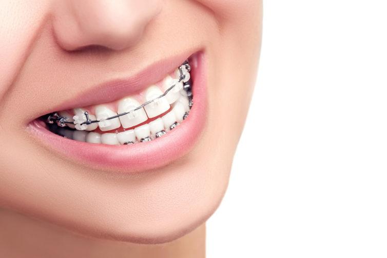 Higiena jamy ustnej u osób z aparatami ortodontycznymi