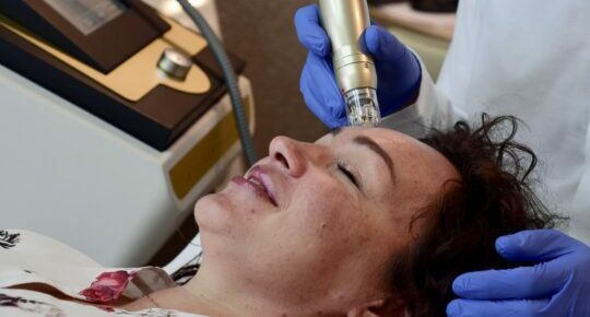 New!  Sylfirm pulsed micro-needle radiofrequency